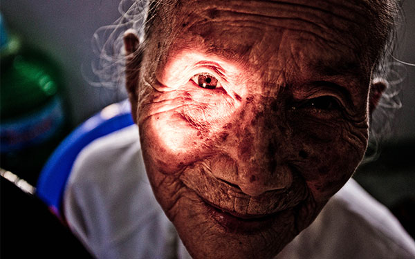 Pioneering Optometry in Vietnam